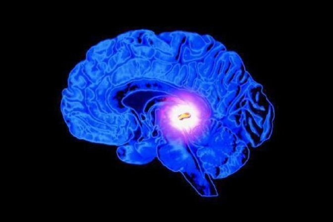 Enhance Spiritual, Mental And Physical Well-being With A Pineal Gland Detox