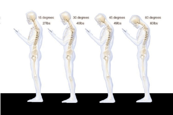 Surgeon Reveals Why Texting Causes So Much Neck Stress
